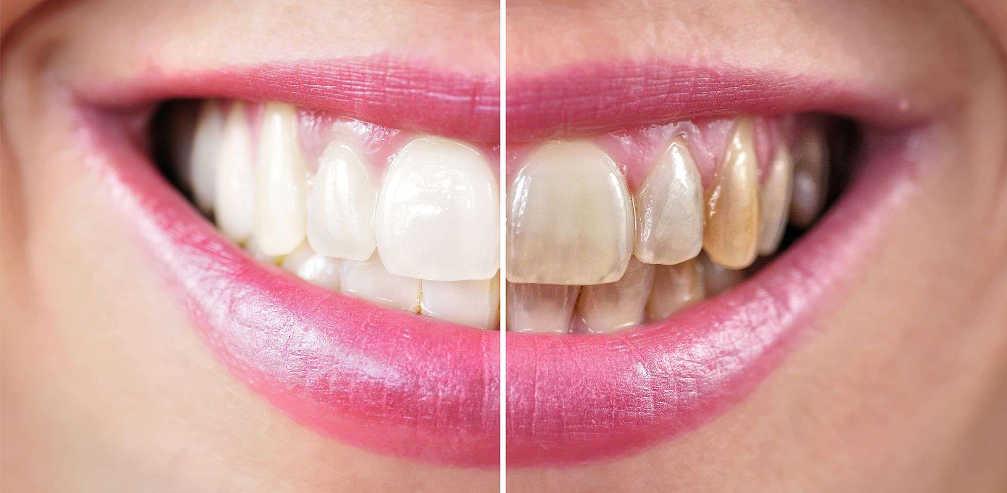 Show Off Your Bright Whites After Using These Teeth Whitening Tips