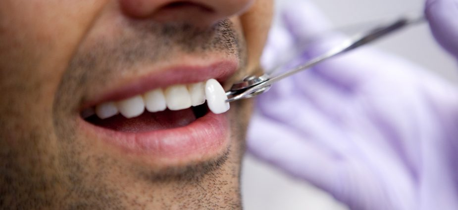Finding The Right Cosmetic Dental Procedure To Improve The Damaged Tooth Through The Dental Veneers!